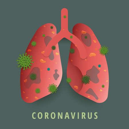 Illustrations concept coronavirus. Vector illustrate. 向量圖像
