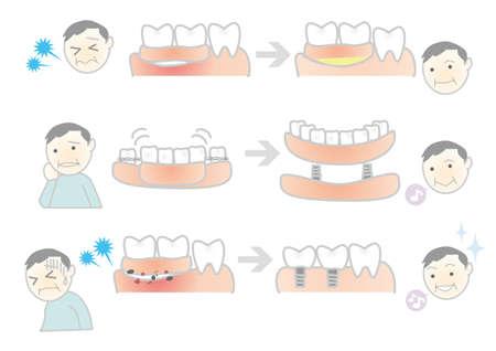 implants: Dentures, bridges, implants