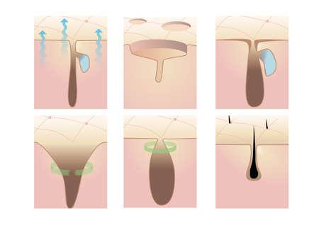 sudando: Poros de la piel
