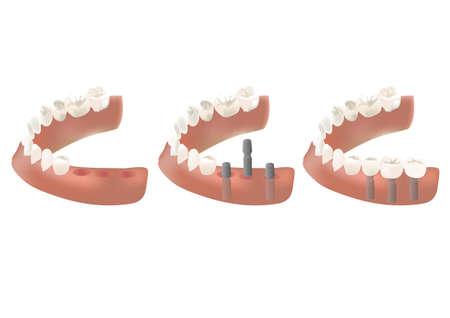 歯インプラント  イラスト・ベクター素材