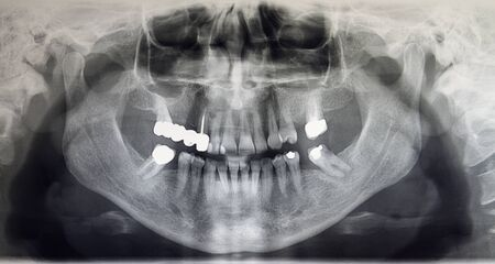 Orthopantomography of an adult patient, dentistry Stock Photo