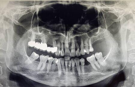 Ortopantomografia dorosłego pacjenta, stomatologia