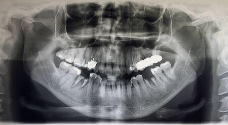 Orthopantomographie d'un patient adulte, dentisterie