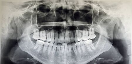 Orthopantomography of an adult patient, dentistry 版權商用圖片 - 132029516