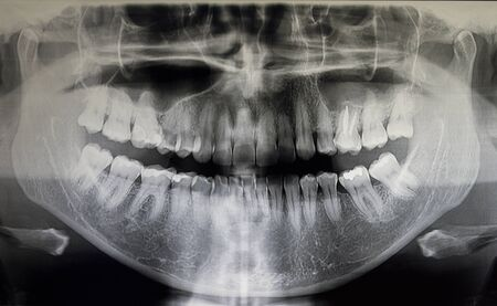 Orthopantomographie eines erwachsenen Patienten, Zahnmedizin