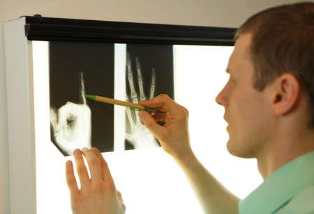 roentgenogram: specialist  watching images of hand at  xray film viewer