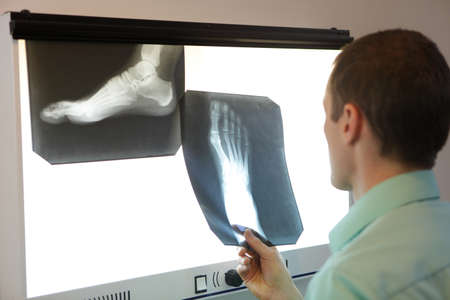 orthopaedist: specialist  watching images of foot at  xray film viewer Stock Photo