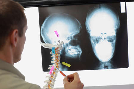 Professional with model of human spine watching images of skull  at x-ray film viewer, Diagnosis,treatment planning Stock Photo