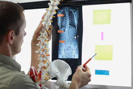 Scoliosis - Specialist with  model  of spine watching image of chest  at x-ray film viewer,. Diagnosis,treatment planning.