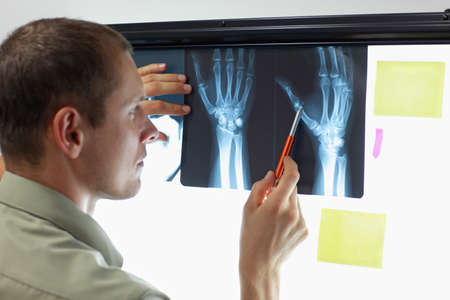 Case study . Professional watching images of hands and fingers at x-ray film viewer