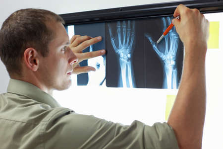 specialist watching images of hands and fingers at x-ray film viewer
