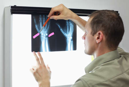 Case study .professional watching images of hands and fingers at x-ray film viewer
