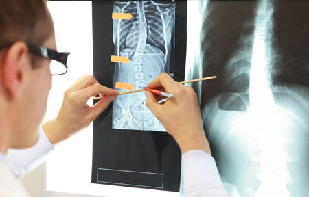 Case study . Doctor working with images of chest and spine at x-ray film viewer,. Diagnosis,treatment planning.