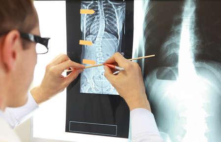 Studium przypadku. Lekarz pracujący z obrazami klatki piersiowej i kręgosłupa w przeglądarce filmów rentgenowskich. Diagnoza, planowanie leczenia. Zdjęcie Seryjne