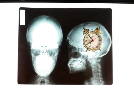 Life around the clock .Alarm Clock in mind on x-ray picture of skull.