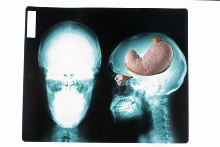 Ideal consumer mind. Stomach model on x-ray picture of skull