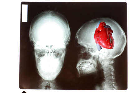 Heart in  mind. Heart model on x-ray  picture of skull .