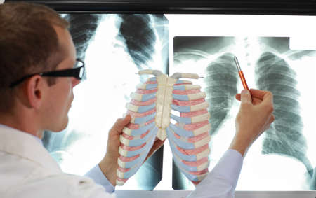 doctor with ribs and lungs model watching image of chest at x-ray film viewer