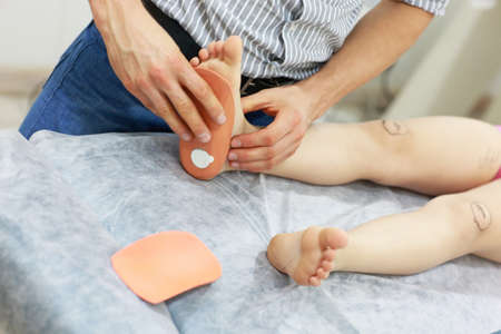 specialist dealing with flat feet problem   by orthopedic insoles Zdjęcie Seryjne