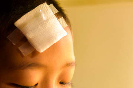 Wound on head of child.Close up and concept for health Stock Photo