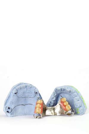 surrogate: partial denture 4 Stock Photo