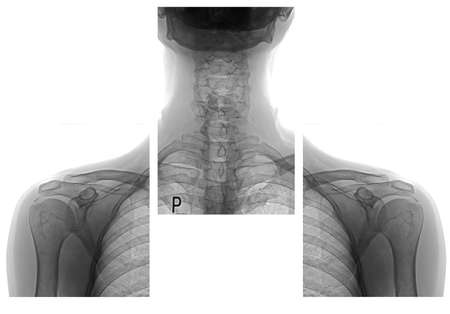 shoulders and neck x ray images