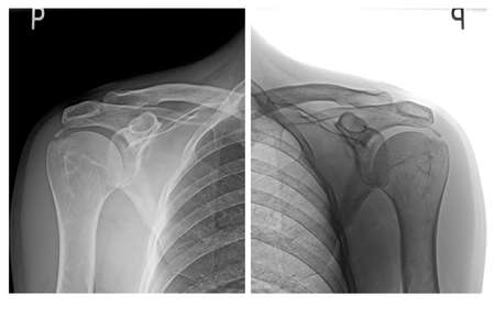 Shoulders x ray images Reklamní fotografie