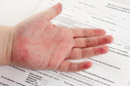 A red rash on a hand over top paperwork at the hospital