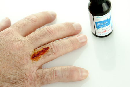 Finger with cut and iodine treatment on it with a bottle 版權商用圖片