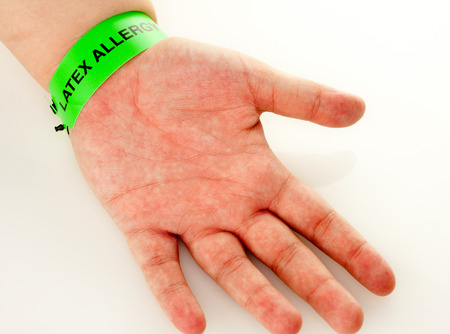 A hand with a latex allergy bracelet around wrist Stok Fotoğraf