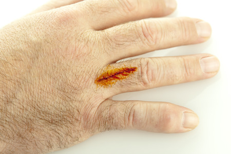 A cut on hand treated with iodine isolated on white