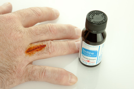 iodine: Finger with cut and iodine treatment on it with a bottle Stock Photo