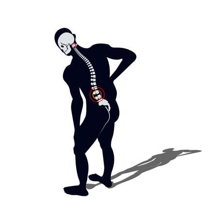 Medical Concept Illustration of Musculotendinous Strain Back Ache or Lumbar Pain. Stock Vector - 78592293