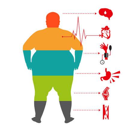 Korpulenz in Verbindung stehende Krankheiten, Manngesundheits-Informationsgraphik. Fett und Gesundheit Mann.