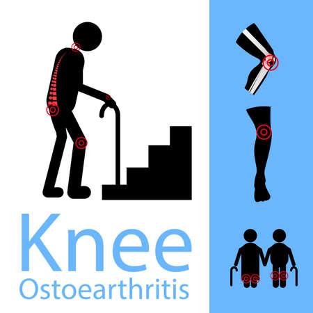 Knee Osteoarthritis banner. Illustration