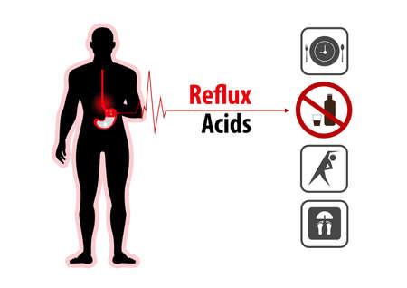 Acid reflux heartburn and gerd infographic