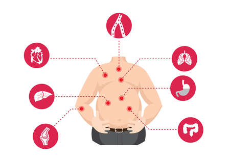 Obesity related diseases  イラスト・ベクター素材