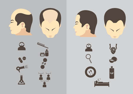 Male hair loss stages set. Man before and after hair treatment and hair transplantation. Male pattern baldness. Transplantation of hair. illustration. Illustration
