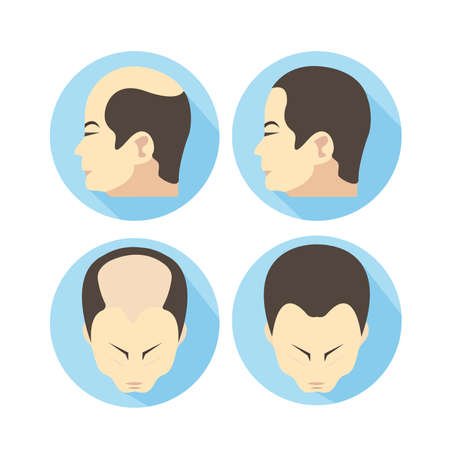 Male hair loss stages set. Man before and after hair treatment and hair transplantation.