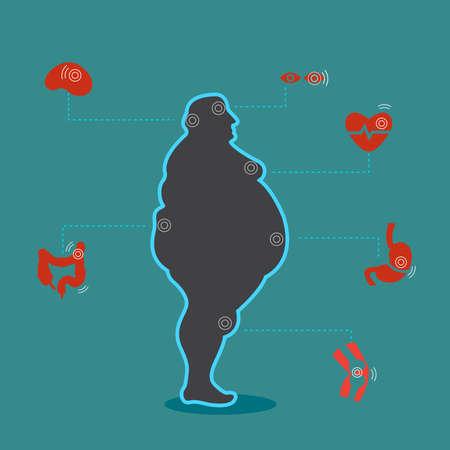 Infografik Adipositas Illustration Poster Vorlage Die Auswirkung von Adipositas auf die Gesundheit und die menschlichen inneren Organe Medizinisches Poster in flachem Design Vektorgrafik