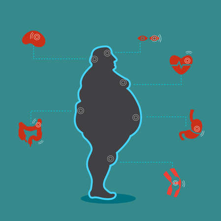 infographic Obesity illustration Poster template The effect of obesity on the health and human internal organs Medical poster in flat design