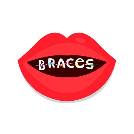 Dental braces, smiling lips have word braces . Smile with braces, illustration