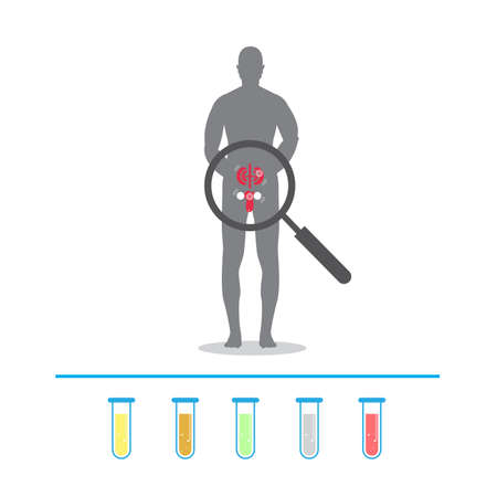 body human with Kidney stones. urine test. icons signs for web graphics