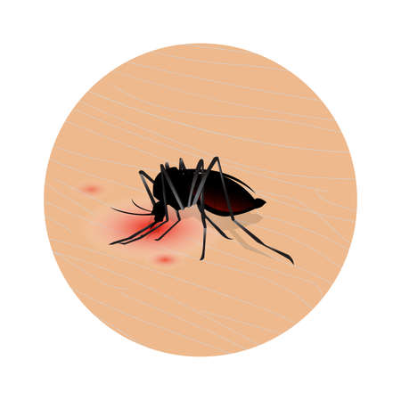 Mosquito bite on skin . Drinks the blood. Bloodsucking pest. illustration Ilustrace