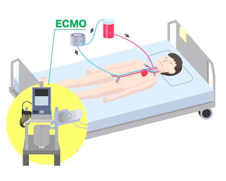 Extracorporeal membrane oxygenator illustration / ECMO  イラスト・ベクター素材