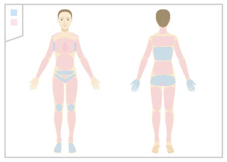 Woman / whole body / naked / hair loss Illustration