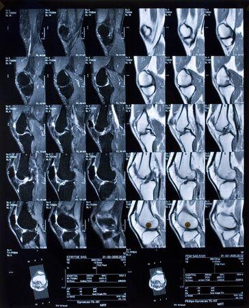 broken knee: Multiple MRI of a knee in side view. Diagnostic: Broken meniscus