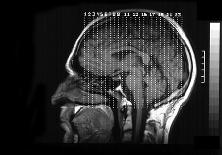 MRI (magnetic resonance image)of a human brain from side view. photo