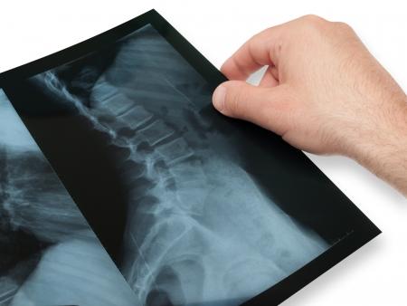 vertebral column: vertebral column radiography