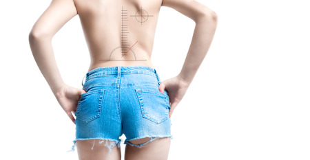 vertebral column: incorrect posture vertebral column disease concept with graphic symbols